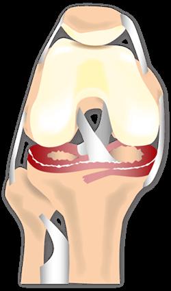 Meniskusschaden Knie
